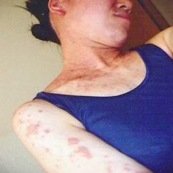 ホメオパスによる改善報告:女性 30歳 主訴:30年間続く難治性アトピー