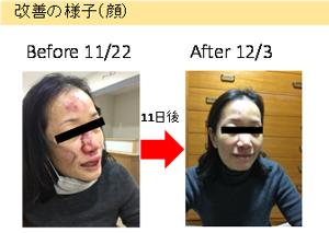 京都府女性の体験談