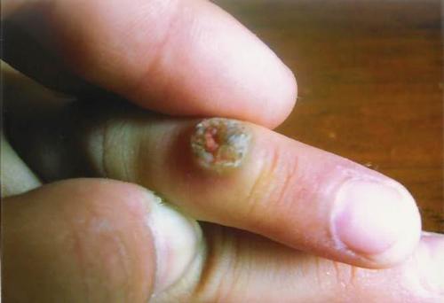 ホメパスによる改善報告:イボのケース